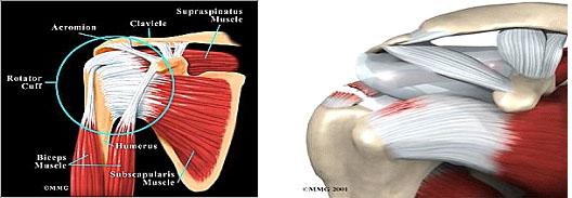 tratamentul periartritei articulației umărului cu unguente)