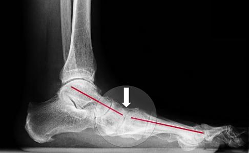 Tratamentul picioarelor plate și artrozei piciorului. Inflamație simultană a tuturor articulațiilor
