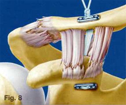 deteriorarea ligamentelor articulației acromioclaviculare distonie vegetativ-vasculară a durerilor articulare