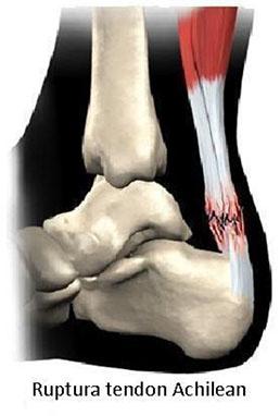 combilipen pentru dureri în articulația umărului entorsa de glezna recuperare