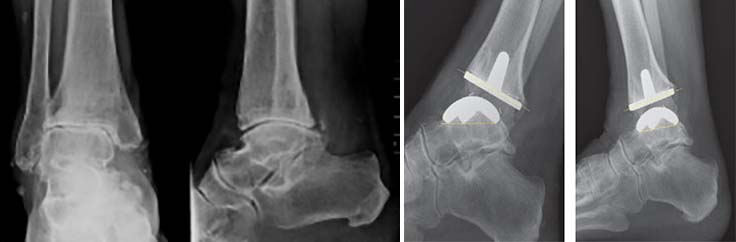 artroza gleznei de gradul I)