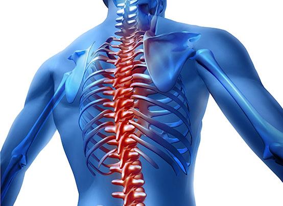 varicoză la coloana vertebrală)